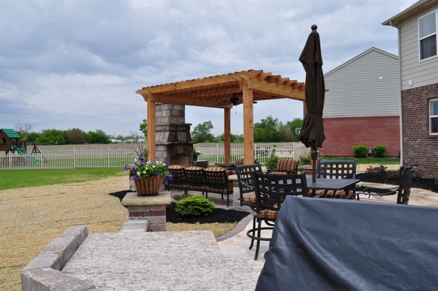 Outdoor Living Space with Pergola and Fireplace